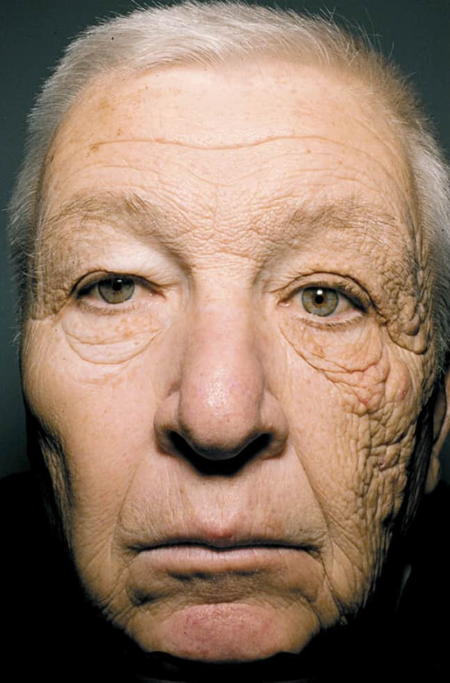 sun damage face